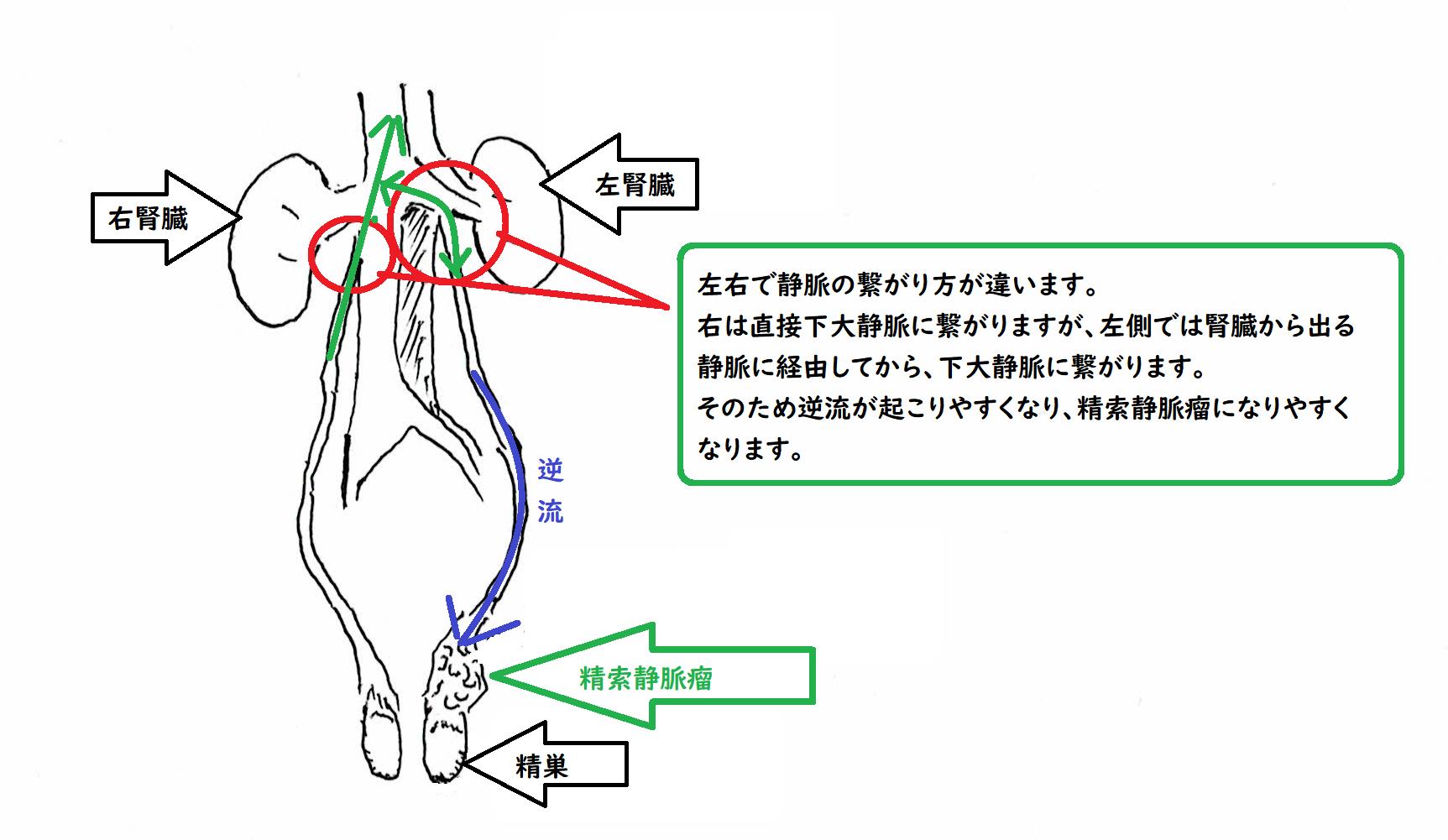 瘤 手術 索 静脈 精