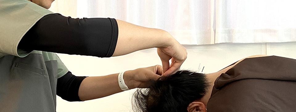 育毛鍼灸治療