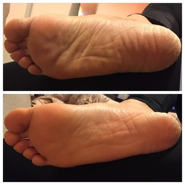 裏 ゴリゴリ 痛い 足