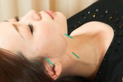 美容鍼施術でたるみ・シワ・シミ・クマ・肌荒れに効果があるワケとは?①