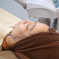 堺市東区のクシロ鍼灸整骨院での美容鍼施術風景をご紹介