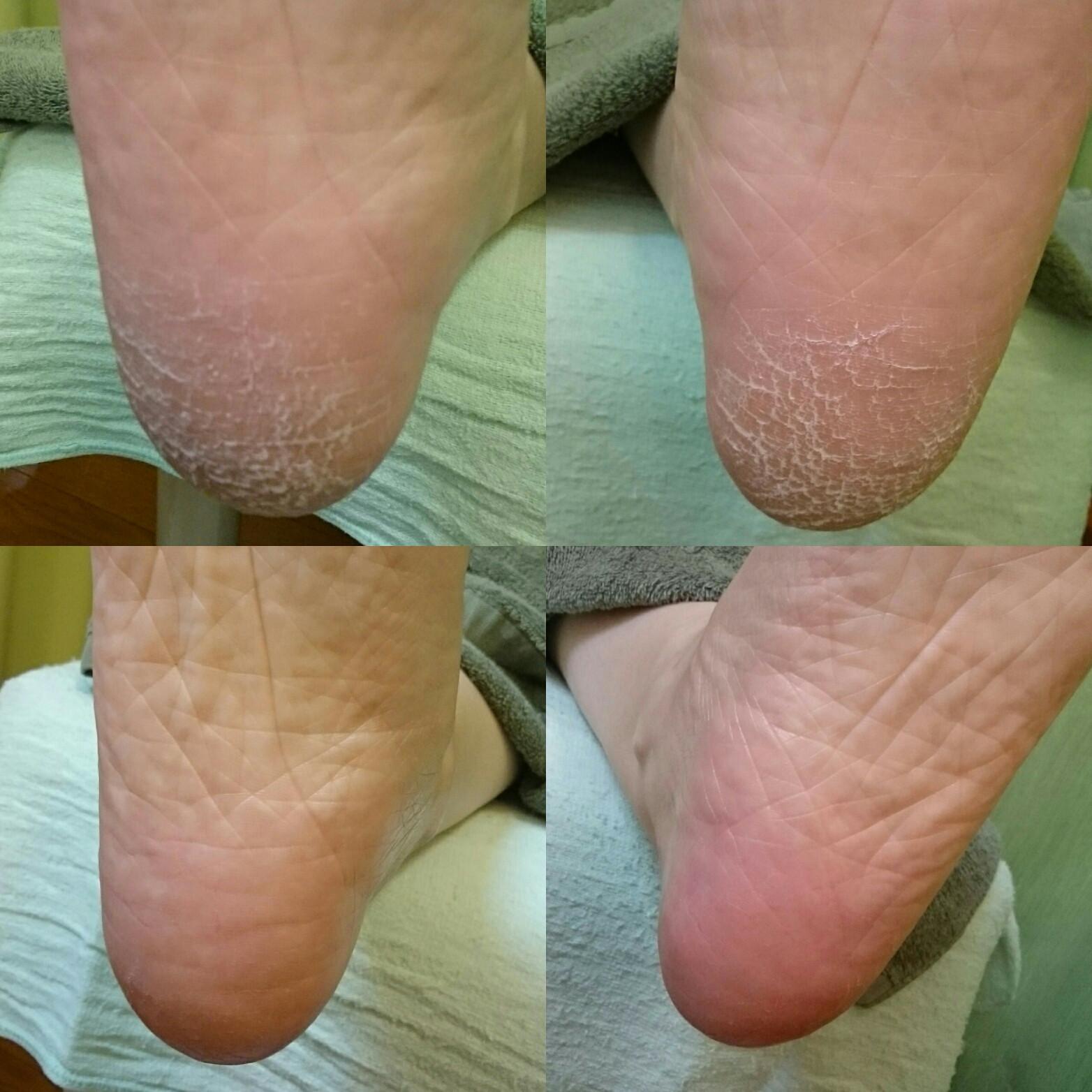 裏 痛い 足 イボ