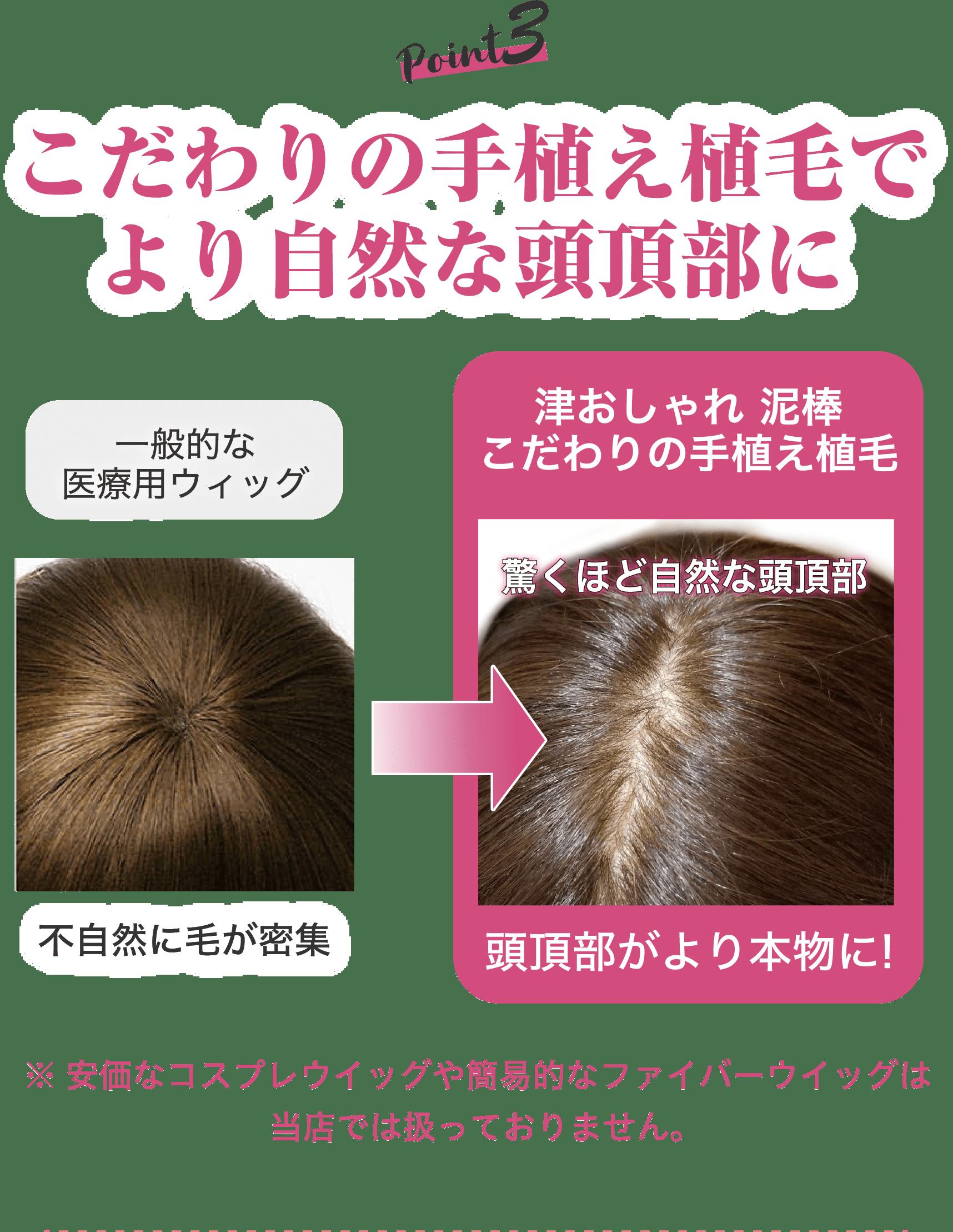 こだわりの手植え植毛でより自然な頭頂部に