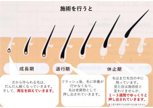 脱毛説明用_page-0011.jpg