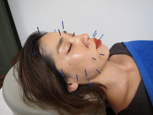 美容鍼灸と小顔整体でお肌を整える (2).jpg