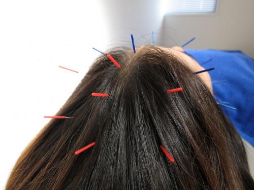 円形脱毛症に育毛鍼灸と頭の整体.jpg