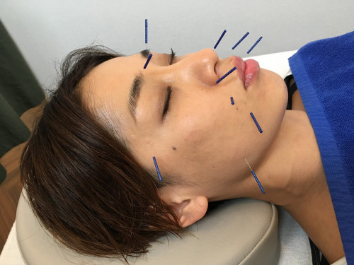 美容鍼灸と小顔整体でお肌を整える (5).jpg