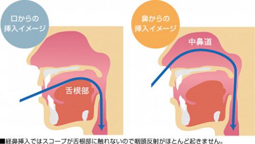 経鼻内視鏡と経口内視鏡.jpg