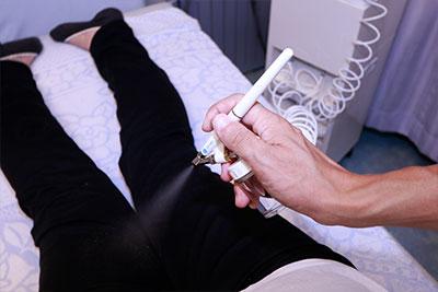 炭酸x鍼灸施術