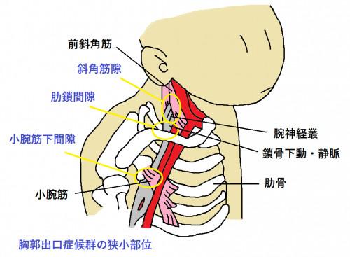 胸郭出口症候群トリミング.png