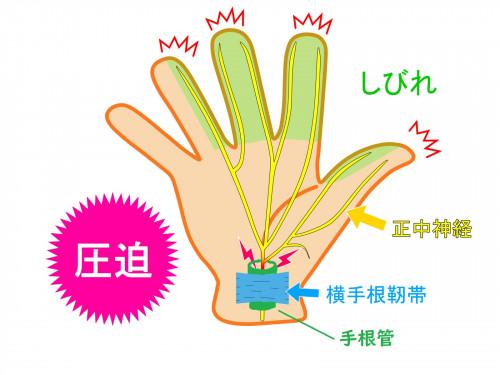 手根管症候群2.jpg