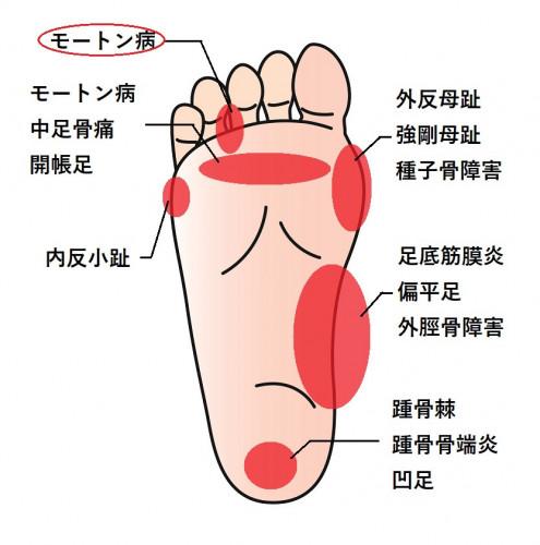 足の裏症状.jpg