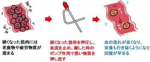 虚血圧迫法イメージ.png