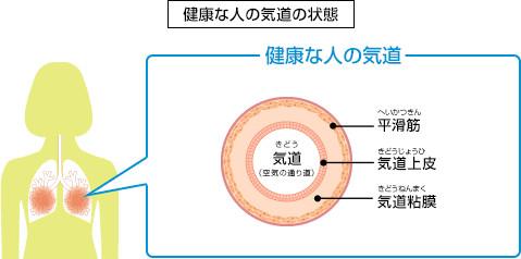 喘息概念図.gif