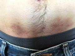 胴回りの皮膚の傷、何で覆いますか?