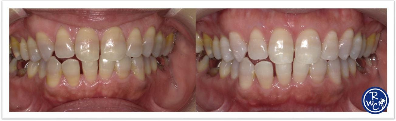 白く 方法 する ホイル アルミ 歯 を