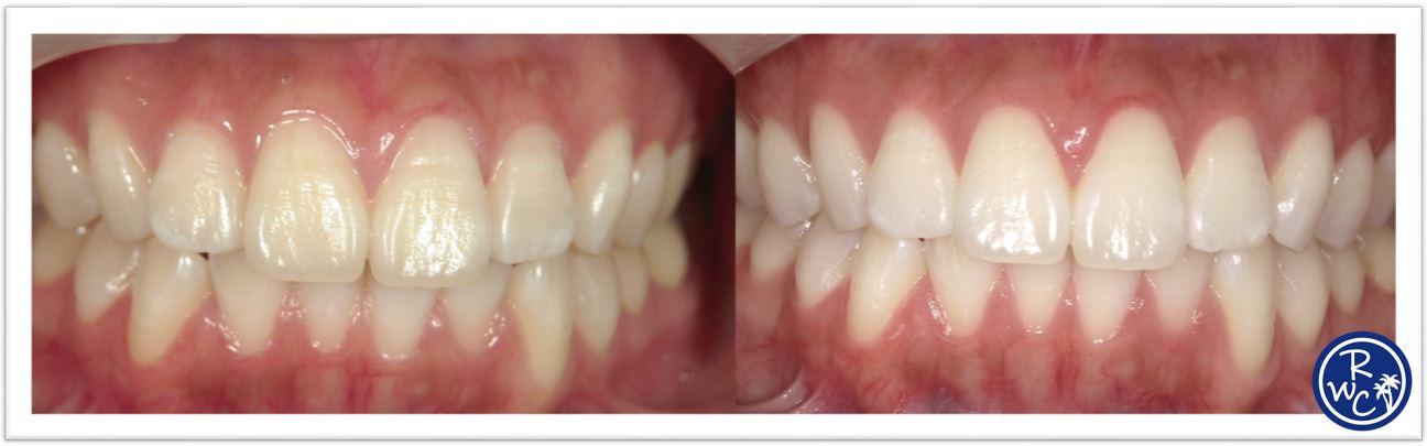 を する ホイル アルミ 白く 方法 歯