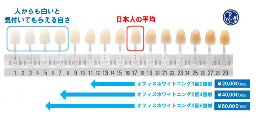 新シェード1.JPG