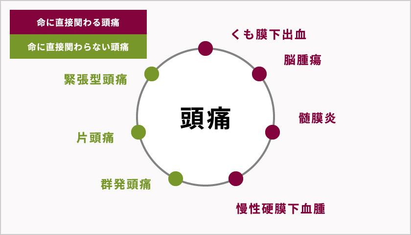 図:頭痛の主な種類と原因