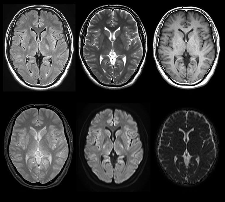 写真:頭部MRI
