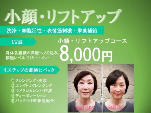修正_小顔リフトアップ.png