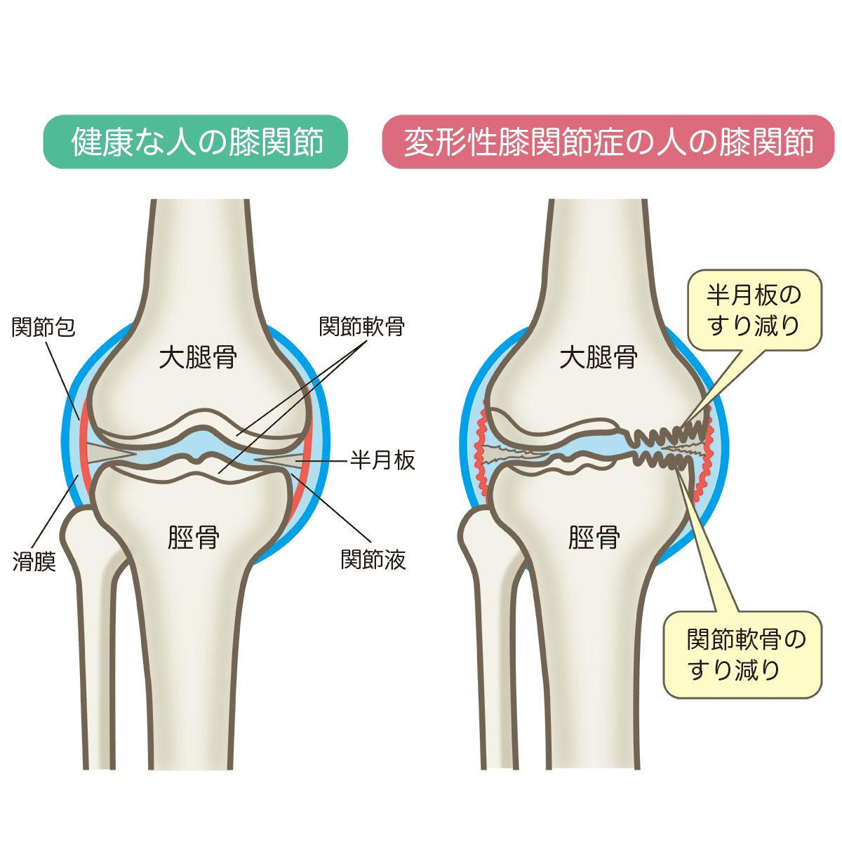 osteoarthritis-of-the-knee.png